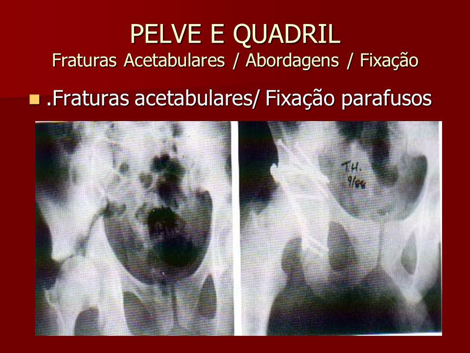 PELVE E QUADRIL Fraturas Acetabulares / Abordagens / Fixação.Fraturas acetabulares/ Fixação parafusos.Fraturas acetabulares/ Fixação parafusos