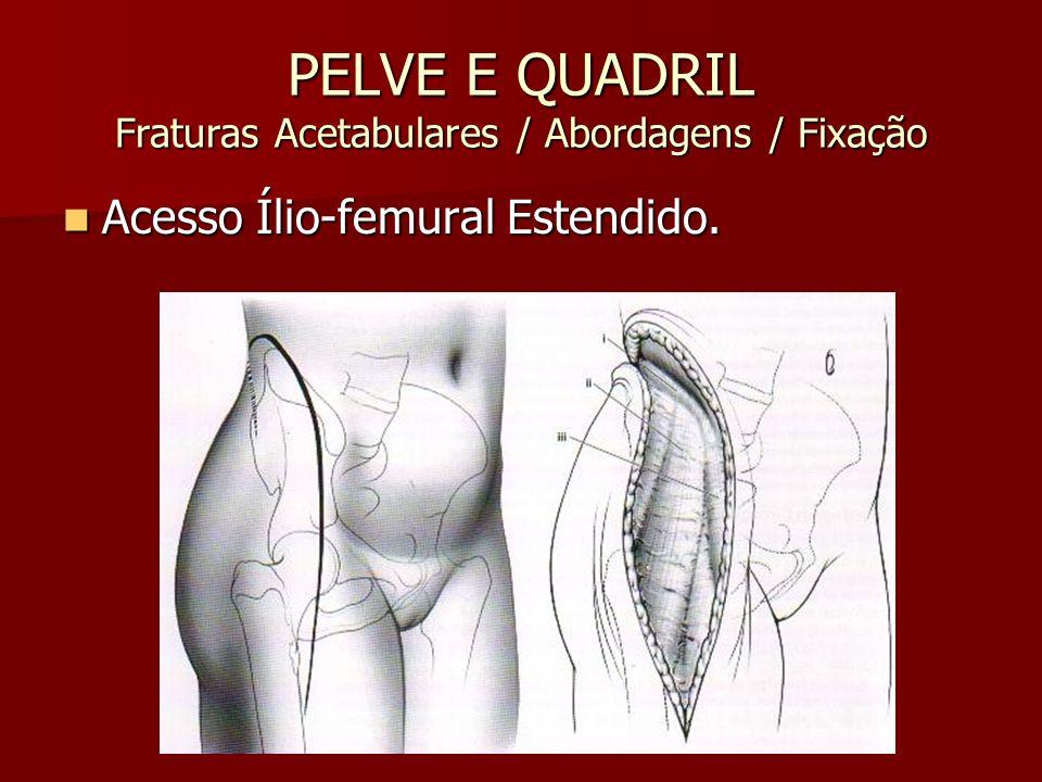 PELVE E QUADRIL Fraturas Acetabulares / Abordagens / Fixação Acesso Ílio-femural Estendido. Acesso Ílio-femural Estendido.