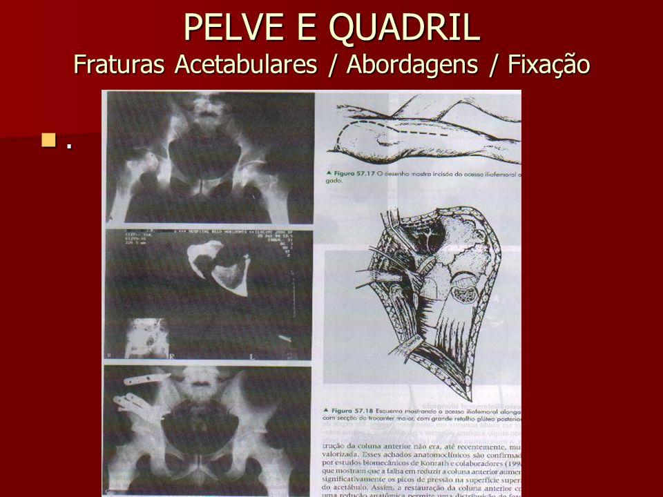 PELVE E QUADRIL Fraturas Acetabulares / Abordagens / Fixação.