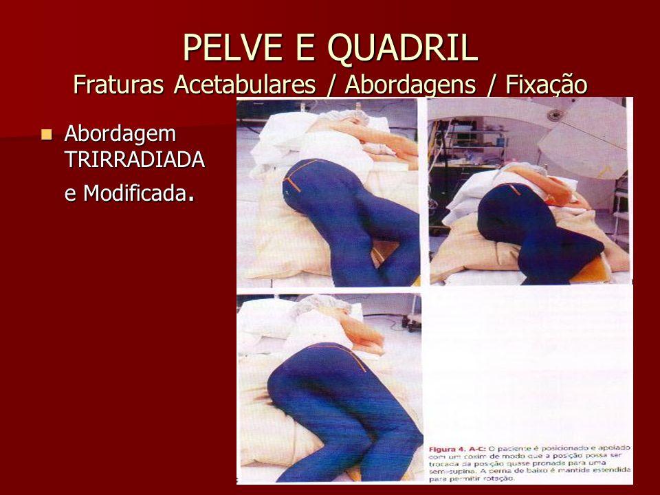 PELVE E QUADRIL Fraturas Acetabulares / Abordagens / Fixação Abordagem TRIRRADIADA e Modificada. Abordagem TRIRRADIADA e Modificada.