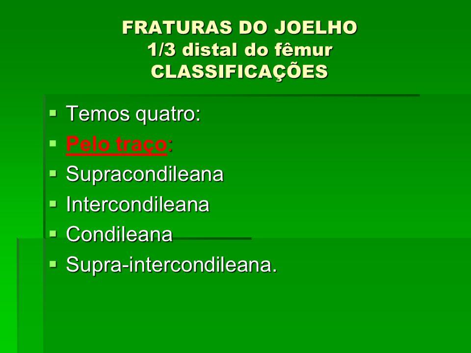 FRATURAS DO JOELHO 1/3 distal do fêmur CLASSIFICAÇÕES Temos quatro: Temos quatro: : Pelo traço: Supracondileana Supracondileana Intercondileana Interc