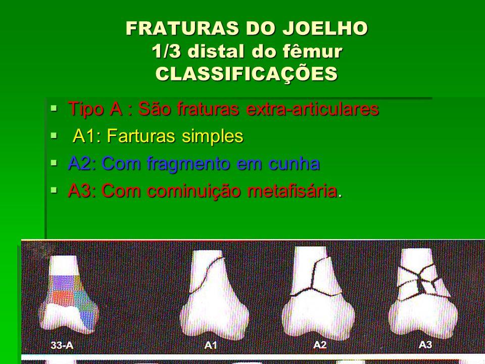 FRATURAS DO JOELHO 1/3 distal do fêmur CLASSIFICAÇÕES Tipo A : São fraturas extra-articulares Tipo A : São fraturas extra-articulares A1: Farturas sim