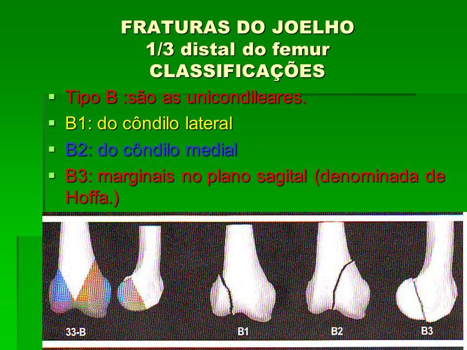 FRATURAS DO JOELHO 1/3 distal do femur CLASSIFICAÇÕES Tipo B :são as unicondileares. Tipo B :são as unicondileares. B1: do côndilo lateral B1: do cônd