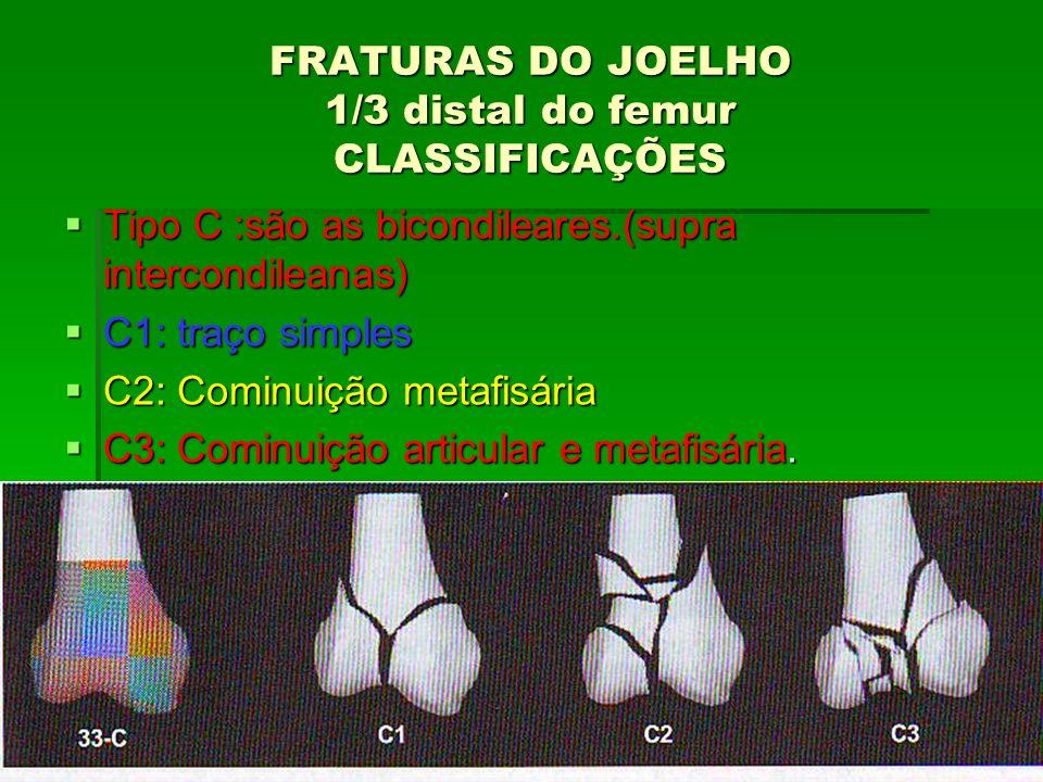 FRATURAS DO JOELHO 1/3 distal do femur CLASSIFICAÇÕES Tipo C :são as bicondileares.(supra intercondileanas) Tipo C :são as bicondileares.(supra interc
