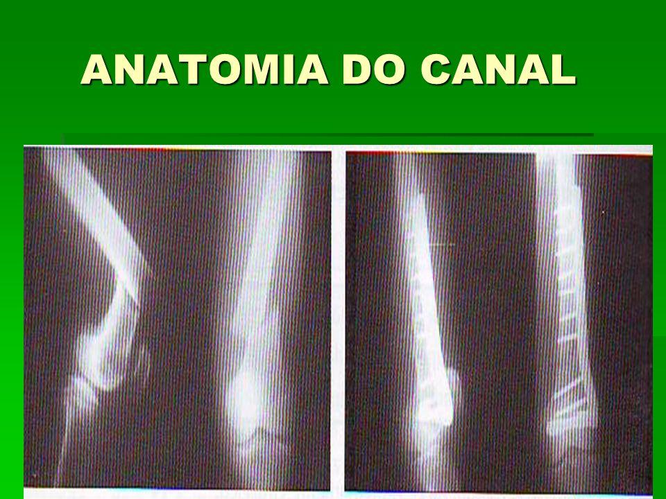 ANATOMIA DO CANAL ANATOMIA DO CANAL