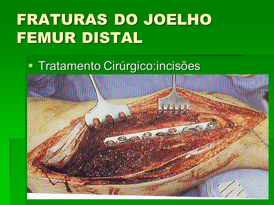 FRATURAS DO JOELHO FEMUR DISTAL Tratamento Cirúrgico:incisões Tratamento Cirúrgico:incisões