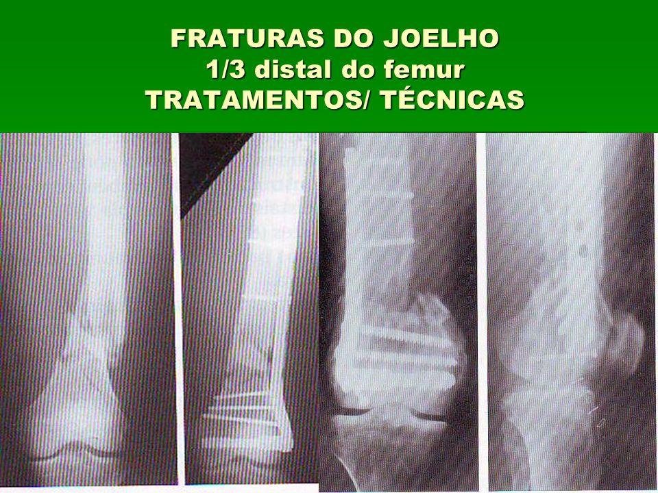 FRATURAS DO JOELHO 1/3 distal do femur TRATAMENTOS/ TÉCNICAS