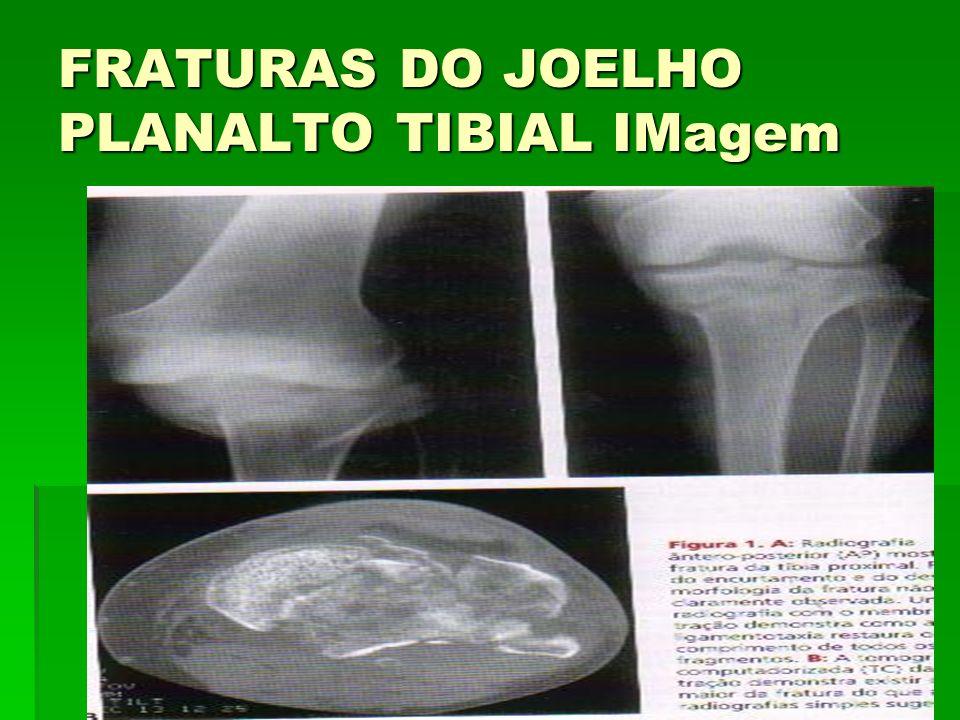 FRATURAS DO JOELHO PLANALTO TIBIAL IMagem
