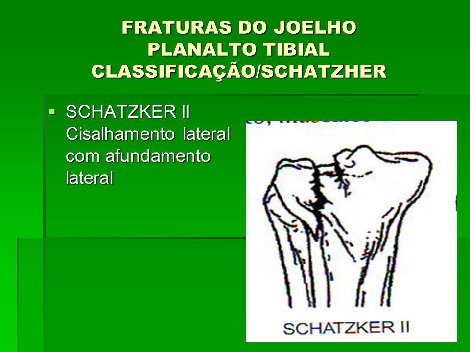 FRATURAS DO JOELHO PLANALTO TIBIAL CLASSIFICAÇÃO/SCHATZHER SCHATZKER II Cisalhamento lateral com afundamento lateral SCHATZKER II Cisalhamento lateral