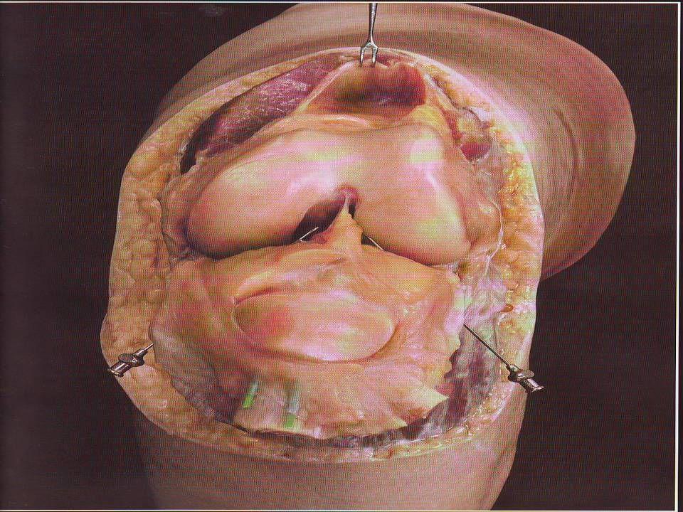 Tratamento Cirúrgico:incisões Tratamento Cirúrgico:incisões