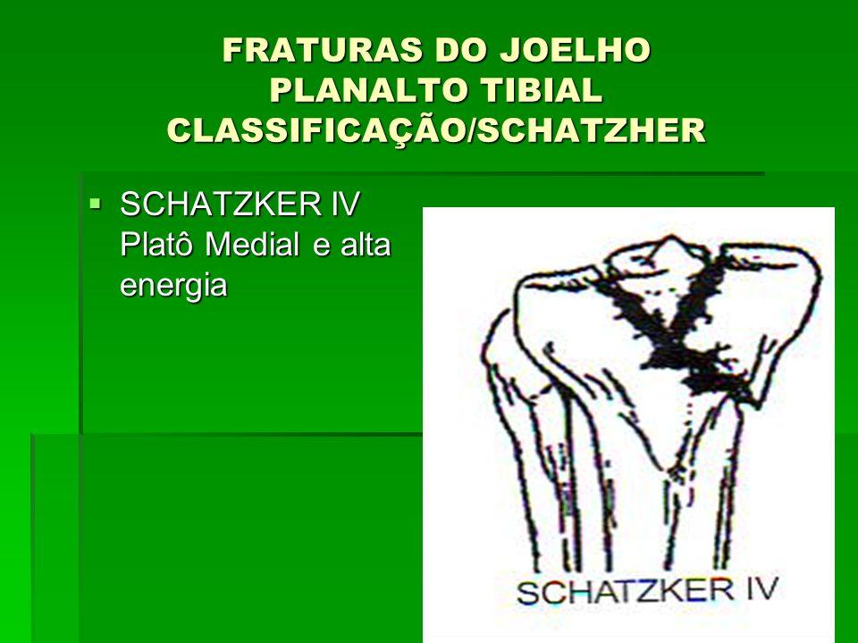 FRATURAS DO JOELHO PLANALTO TIBIAL CLASSIFICAÇÃO/SCHATZHER SCHATZKER IV Platô Medial e alta energia SCHATZKER IV Platô Medial e alta energia
