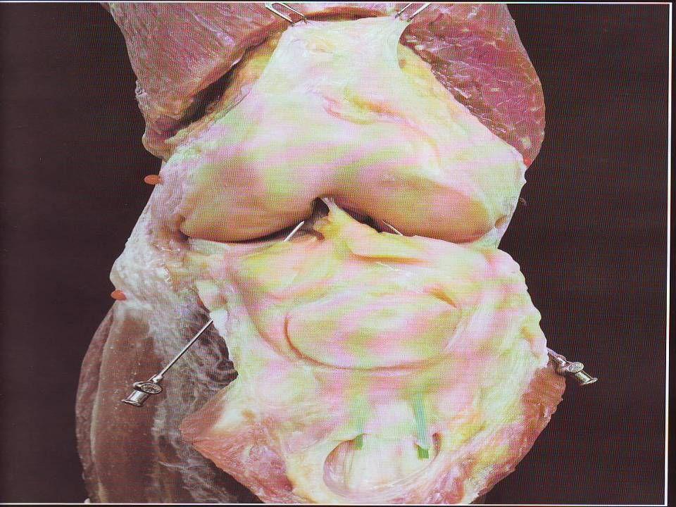 Os meniscos tem importante ação na interligação entre o Femur e a Tibia, funcionando como amortecedores, estabilizadores e permitindo a congruência articular.