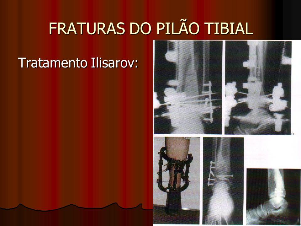 FRATURAS DO PILÃO TIBIAL Tratamento Ilisarov: