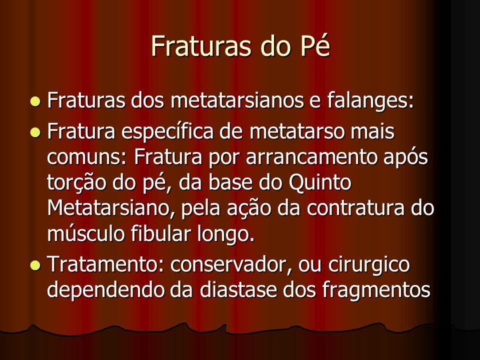 Fraturas do Pé Fraturas dos metatarsianos e falanges: Fraturas dos metatarsianos e falanges: Fratura específica de metatarso mais comuns: Fratura por