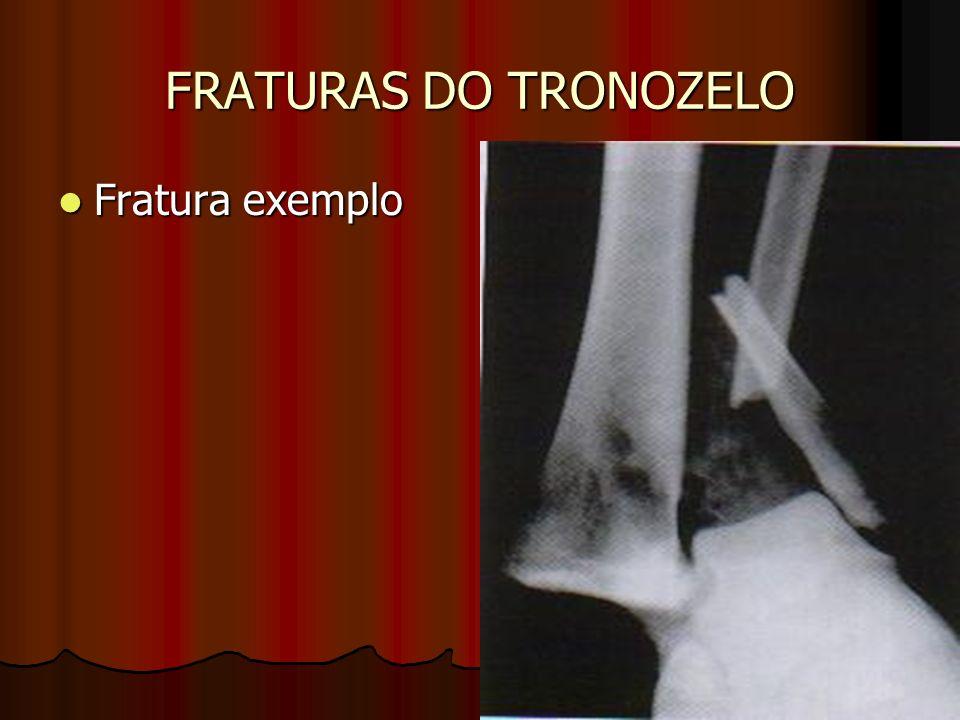 FRATURAS DO TRONOZELO Fratura exemplo Fratura exemplo