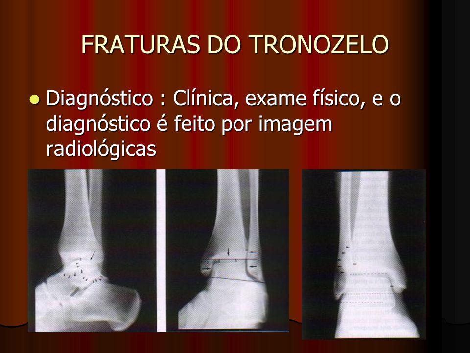 FRATURAS DO TRONOZELO Diagnóstico : Clínica, exame físico, e o diagnóstico é feito por imagem radiológicas Diagnóstico : Clínica, exame físico, e o di
