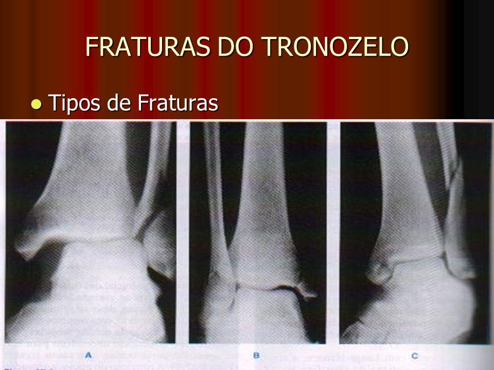FRATURAS DO TRONOZELO Tipos de Fraturas Tipos de Fraturas