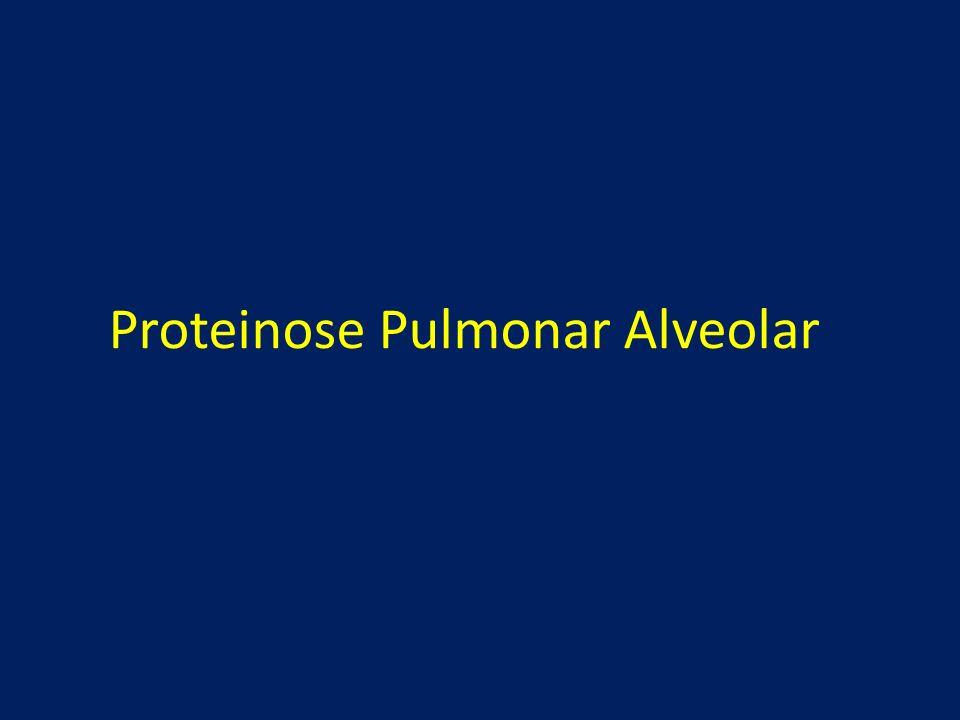 Objetivo A proteinose alveolar pulmonar se manifesta através de preenchimento do alvéolo por material proteináceo, em associação com resposta inflamatória adjacente.