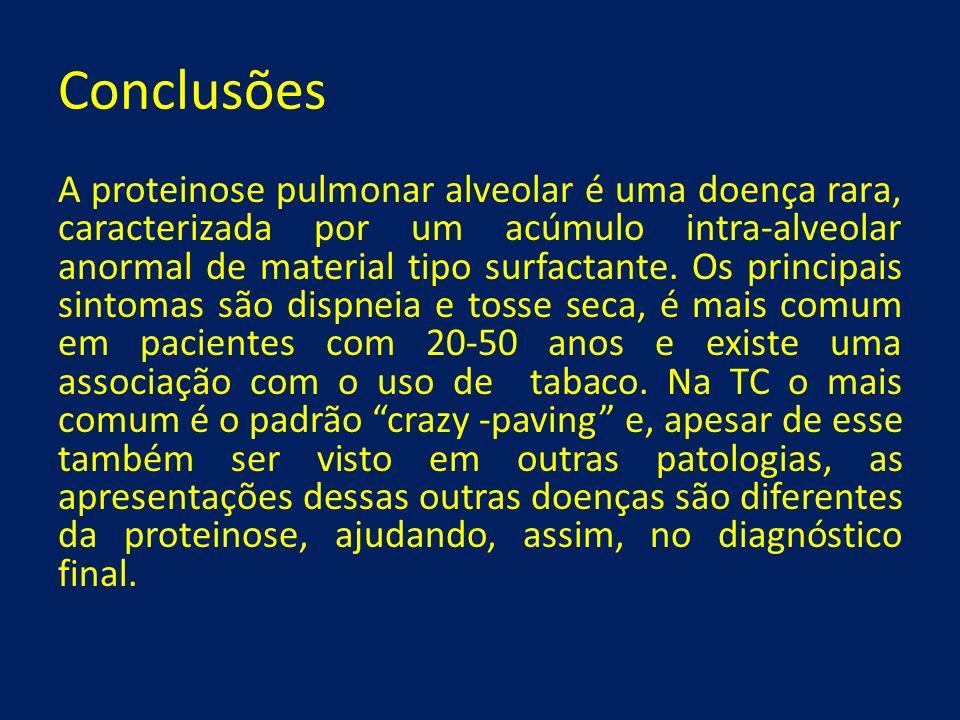 Conclusões A proteinose pulmonar alveolar é uma doença rara, caracterizada por um acúmulo intra-alveolar anormal de material tipo surfactante. Os prin