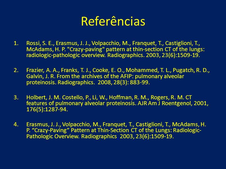 Referências 1.Rossi, S. E., Erasmus, J. J., Volpacchio, M., Franquet, T., Castiglioni, T., McAdams, H. P.