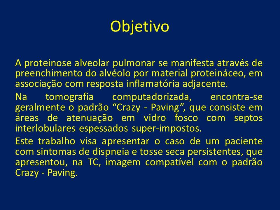 Objetivo A proteinose alveolar pulmonar se manifesta através de preenchimento do alvéolo por material proteináceo, em associação com resposta inflamat