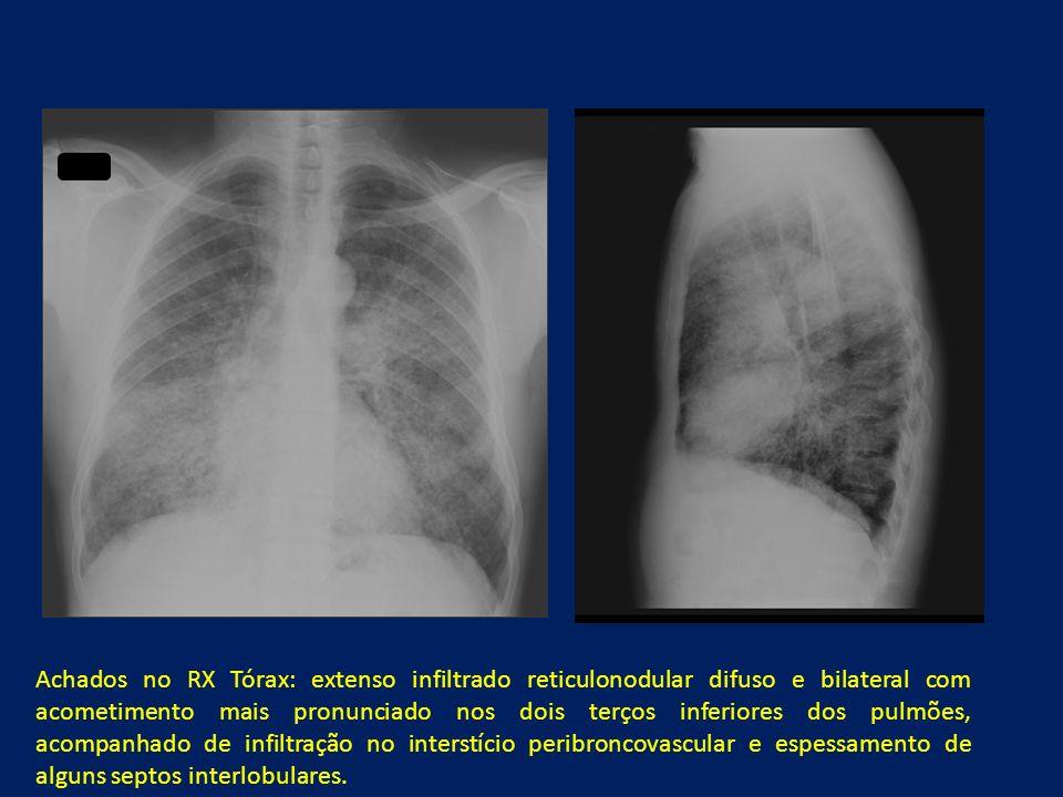 Achados no RX Tórax: extenso infiltrado reticulonodular difuso e bilateral com acometimento mais pronunciado nos dois terços inferiores dos pulmões, a