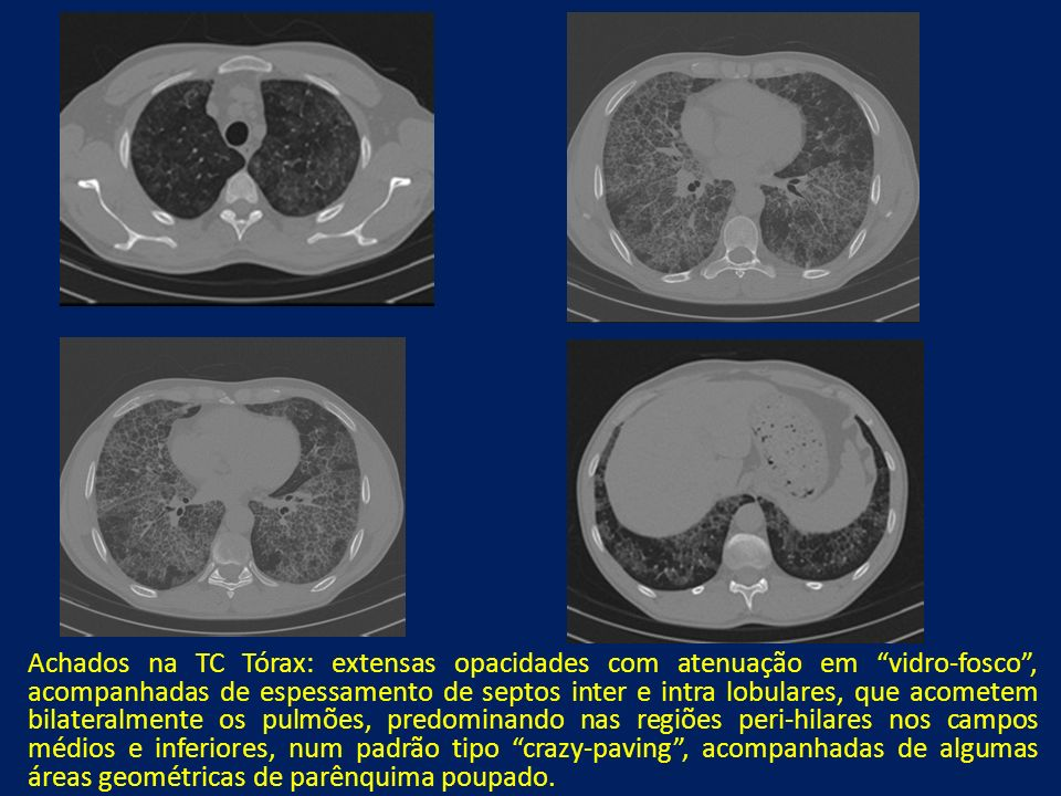 Achados na TC Tórax: extensas opacidades com atenuação em vidro-fosco, acompanhadas de espessamento de septos inter e intra lobulares, que acometem bi