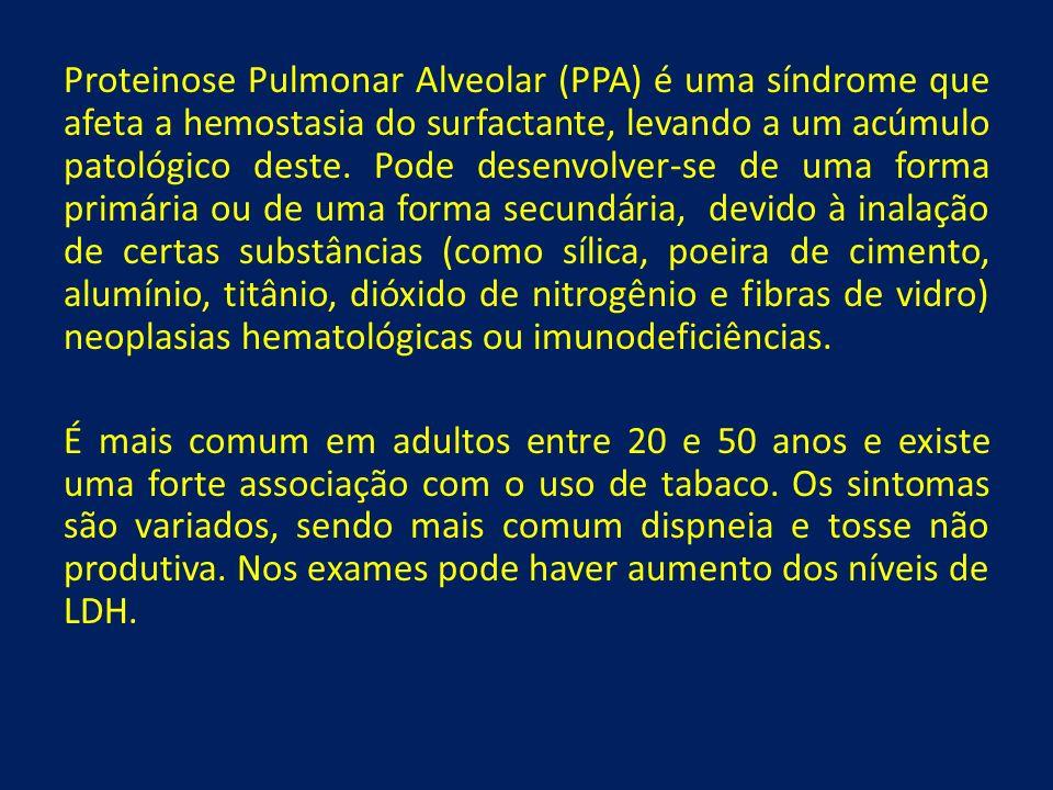 Proteinose Pulmonar Alveolar (PPA) é uma síndrome que afeta a hemostasia do surfactante, levando a um acúmulo patológico deste. Pode desenvolver-se de