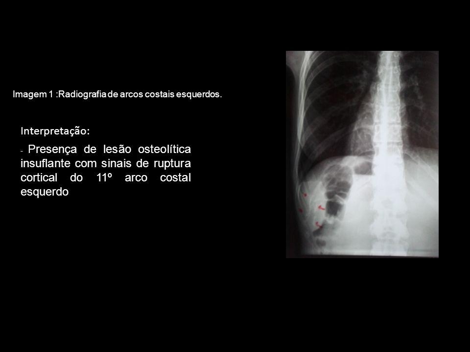 Interpretação: - Presença de lesão osteolítica insuflante com sinais de ruptura cortical do 11º arco costal esquerdo Imagem 1 :Radiografia de arcos co