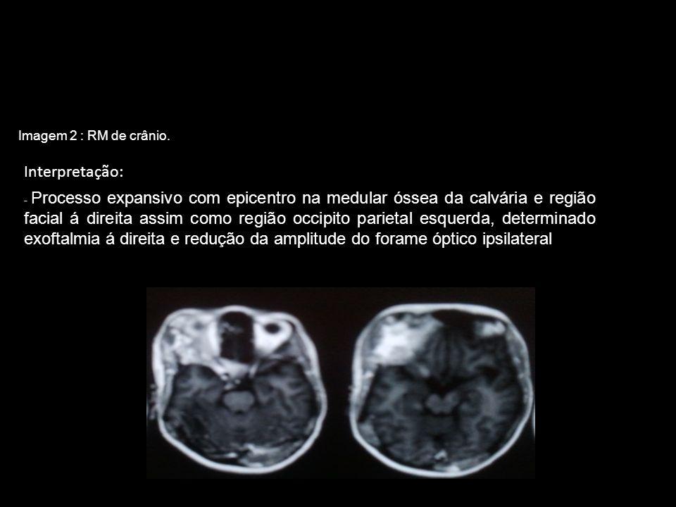 Imagem 2 : RM de crânio.