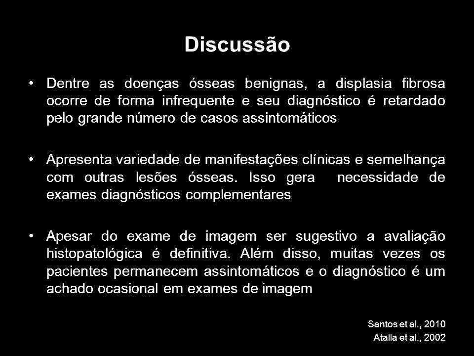 Discussão Dentre as doenças ósseas benignas, a displasia fibrosa ocorre de forma infrequente e seu diagnóstico é retardado pelo grande número de casos