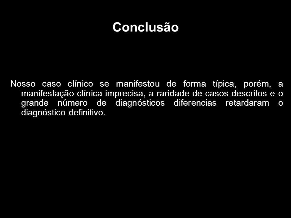 Conclusão Nosso caso clínico se manifestou de forma típica, porém, a manifestação clínica imprecisa, a raridade de casos descritos e o grande número de diagnósticos diferencias retardaram o diagnóstico definitivo.
