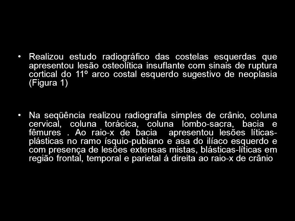 Realizou estudo radiográfico das costelas esquerdas que apresentou lesão osteolítica insuflante com sinais de ruptura cortical do 11º arco costal esquerdo sugestivo de neoplasia (Figura 1) Na seqüência realizou radiografia simples de crânio, coluna cervical, coluna torácica, coluna lombo-sacra, bacia e fêmures.