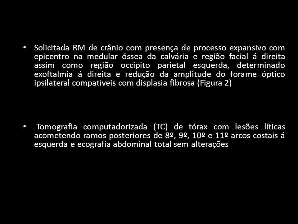 Solicitada RM de crânio com presença de processo expansivo com epicentro na medular óssea da calvária e região facial á direita assim como região occipito parietal esquerda, determinado exoftalmia á direita e redução da amplitude do forame óptico ipsilateral compatíveis com displasia fibrosa (Figura 2) Tomografia computadorizada (TC) de tórax com lesões líticas acometendo ramos posteriores de 8º, 9º, 10º e 11º arcos costais á esquerda e ecografia abdominal total sem alterações