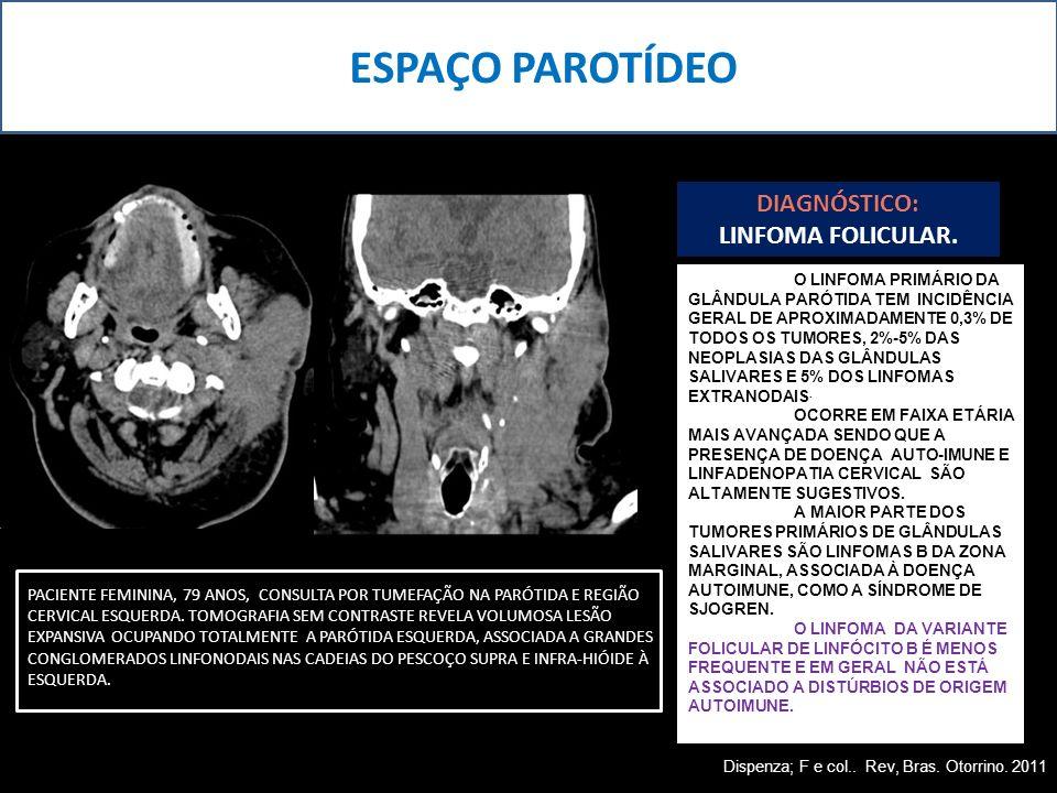 ESPAÇO PAROTÍDEO DIAGNÓSTICO: LINFOMA FOLICULAR. PACIENTE FEMININA, 79 ANOS, CONSULTA POR TUMEFAÇÃO NA PARÓTIDA E REGIÃO CERVICAL ESQUERDA. TOMOGRAFIA