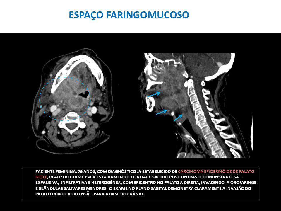 PACIENTE FEMININA, 76 ANOS, COM DIAGNÓSTICO JÁ ESTABELECIDO DE CARCINOMA EPIDERMÓIDE DE PALATO MOLE, REALIZOU EXAME PARA ESTADIAMENTO. TC AXIAL E SAGI
