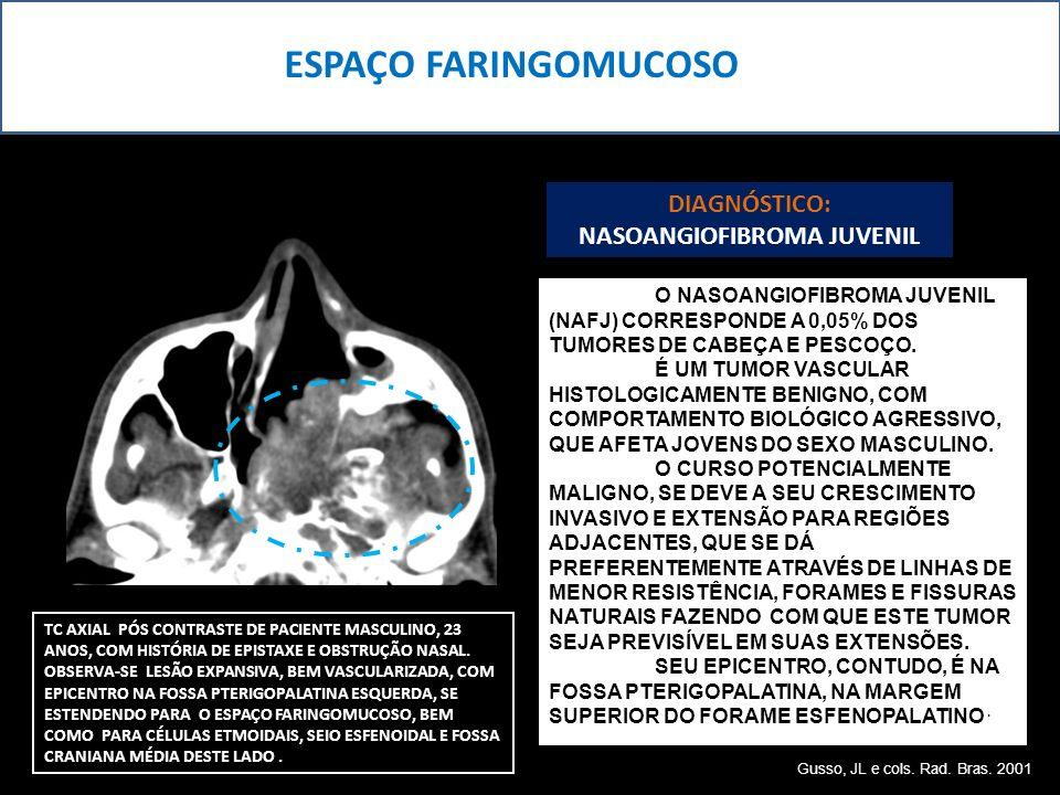 ESPAÇO FARINGOMUCOSO TC AXIAL PÓS CONTRASTE DE PACIENTE MASCULINO, 23 ANOS, COM HISTÓRIA DE EPISTAXE E OBSTRUÇÃO NASAL. OBSERVA-SE LESÃO EXPANSIVA, BE