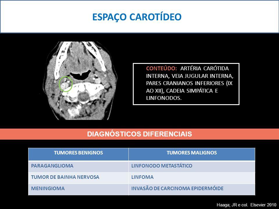 CONTEÚDO: ARTÉRIA CARÓTIDA INTERNA, VEIA JUGULAR INTERNA, PARES CRANIANOS INFERIORES (IX AO XII), CADEIA SIMPÁTICA E LINFONODOS. ESPAÇO CAROTÍDEO TUMO