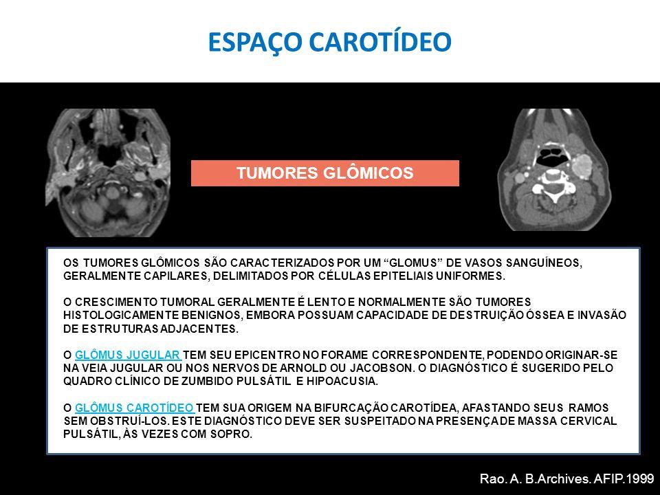 TUMORES GLÔMICOS OS TUMORES GLÔMICOS SÃO CARACTERIZADOS POR UM GLOMUS DE VASOS SANGUÍNEOS, GERALMENTE CAPILARES, DELIMITADOS POR CÉLULAS EPITELIAIS UN