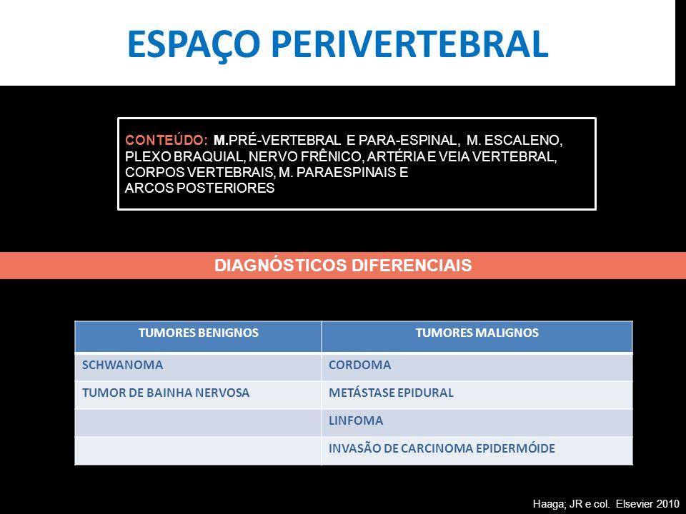 ESPAÇO PERIVERTEBRAL CONTEÚDO: M.PRÉ-VERTEBRAL E PARA-ESPINAL, M. ESCALENO, PLEXO BRAQUIAL, NERVO FRÊNICO, ARTÉRIA E VEIA VERTEBRAL, CORPOS VERTEBRAIS