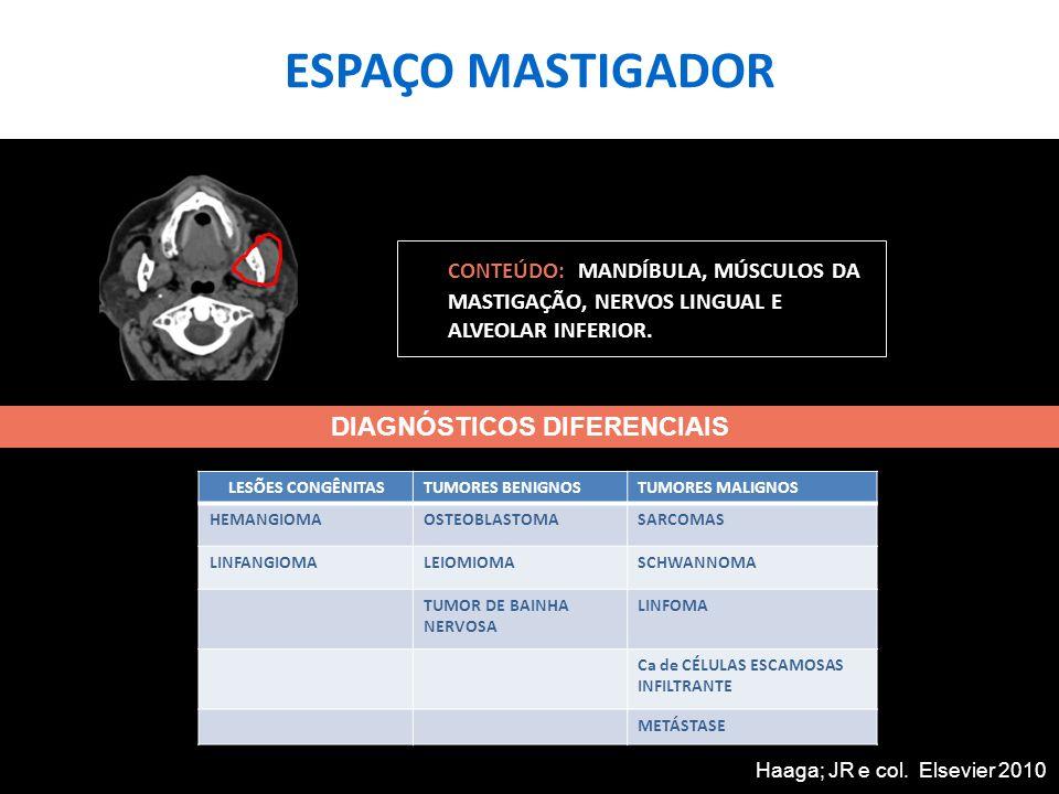 ESPAÇO MASTIGADOR TC AXIAL SEM CONTRASTE DE PACIENTE FEMININA, 21 ANOS, COM QUEIXA DE ABAULAMENTO NA MANDÍBULA: LESÃO LÍTICA NO CORPO DA MANDÍBULA À DIREITA, QUE DESTRÓI A CORTICAL ÓSSEA E SE ACOMPANHA DE COMPONENTE COM DENSIDADE DE TECIDOS MOLES DIAGNÓSTICO HISTOLÓGICO: SARCOMA DE MANDÍBULA SEM OUTRA ESPECIFICAÇÃO.