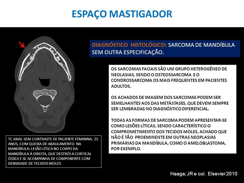 ESPAÇO MASTIGADOR TC AXIAL SEM CONTRASTE DE PACIENTE FEMININA, 21 ANOS, COM QUEIXA DE ABAULAMENTO NA MANDÍBULA: LESÃO LÍTICA NO CORPO DA MANDÍBULA À D