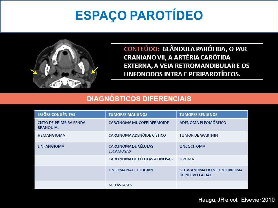 ESPAÇO PAROTÍDEO PACIENTE FEMININA, 76 ANOS, COM TUMEFAÇÃO INDOLOR NA REGIÃO PAROTÍDEA ESQUERDA.