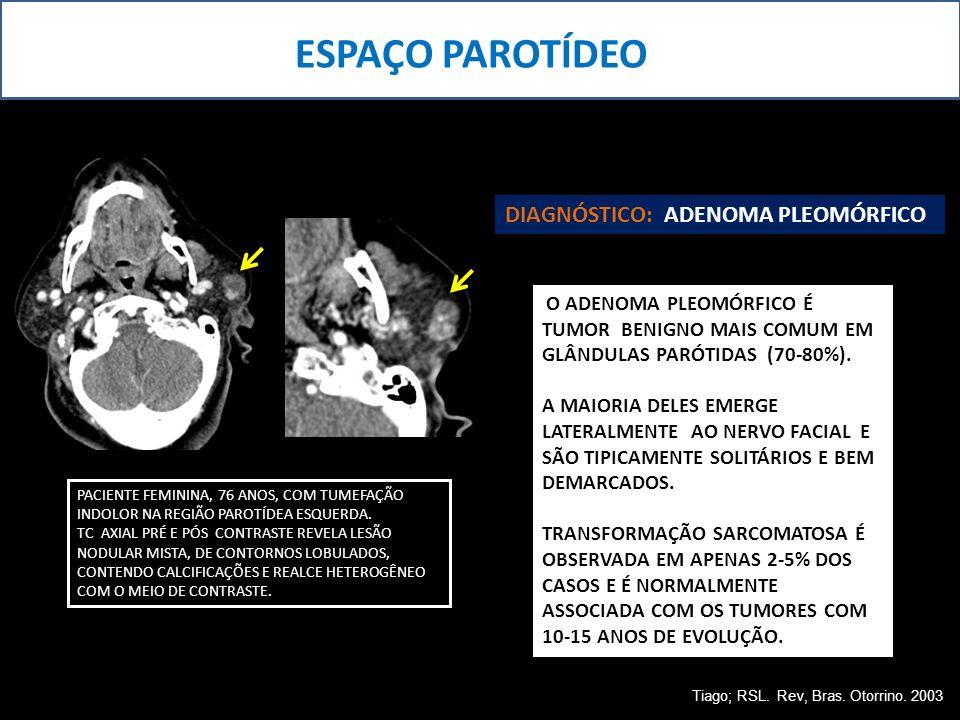 ESPAÇO PAROTÍDEO PACIENTE FEMININA, 76 ANOS, COM TUMEFAÇÃO INDOLOR NA REGIÃO PAROTÍDEA ESQUERDA. TC AXIAL PRÉ E PÓS CONTRASTE REVELA LESÃO NODULAR MIS