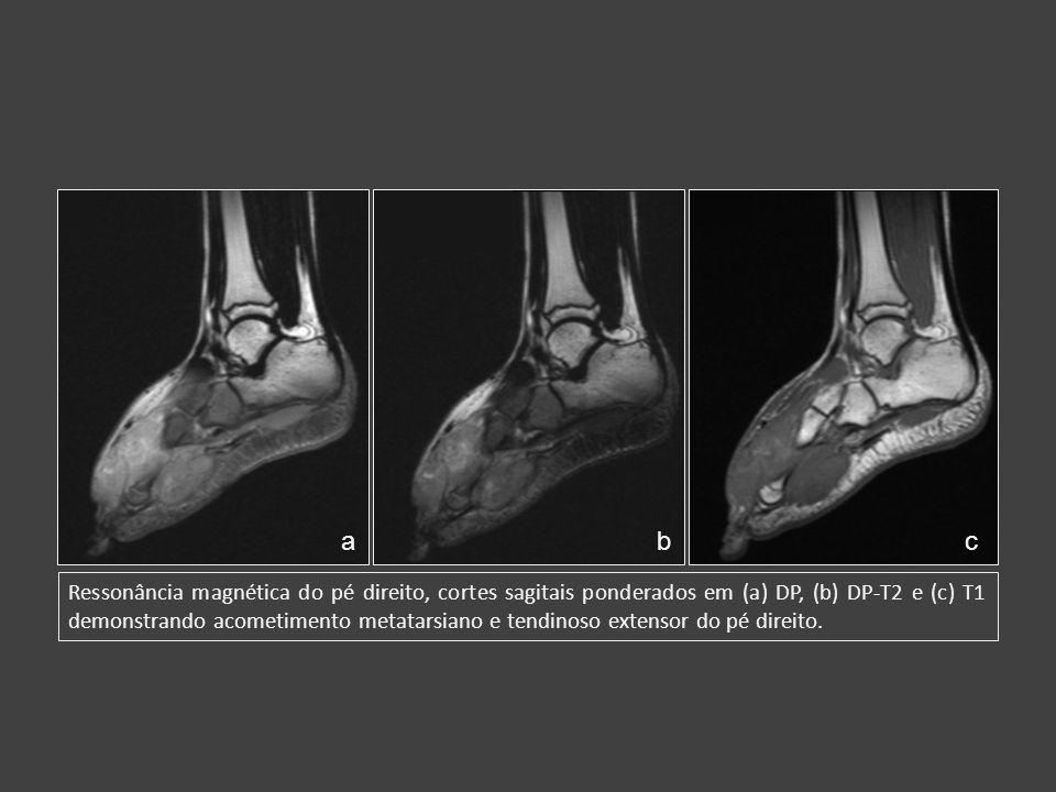 Ressonância magnética do pé direito, cortes sagitais ponderados em (a) DP, (b) DP-T2 e (c) T1 demonstrando acometimento metatarsiano e tendinoso exten