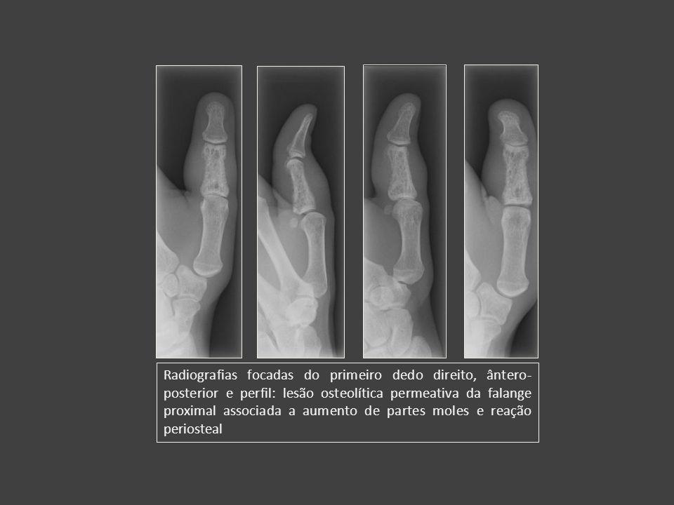 Radiografias focadas do primeiro dedo direito, ântero- posterior e perfil: lesão osteolítica permeativa da falange proximal associada a aumento de par