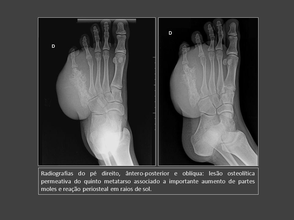 Radiografias do pé direito, ântero-posterior e oblíqua: lesão osteolítica permeativa do quinto metatarso associado a importante aumento de partes mole