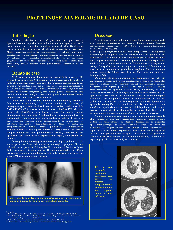PROTEINOSE ALVEOLAR: RELATO DE CASO Introdução Discussão Relato de caso Proteinose alveolar é uma afecção rara, em que material lipoproteináceo se dep