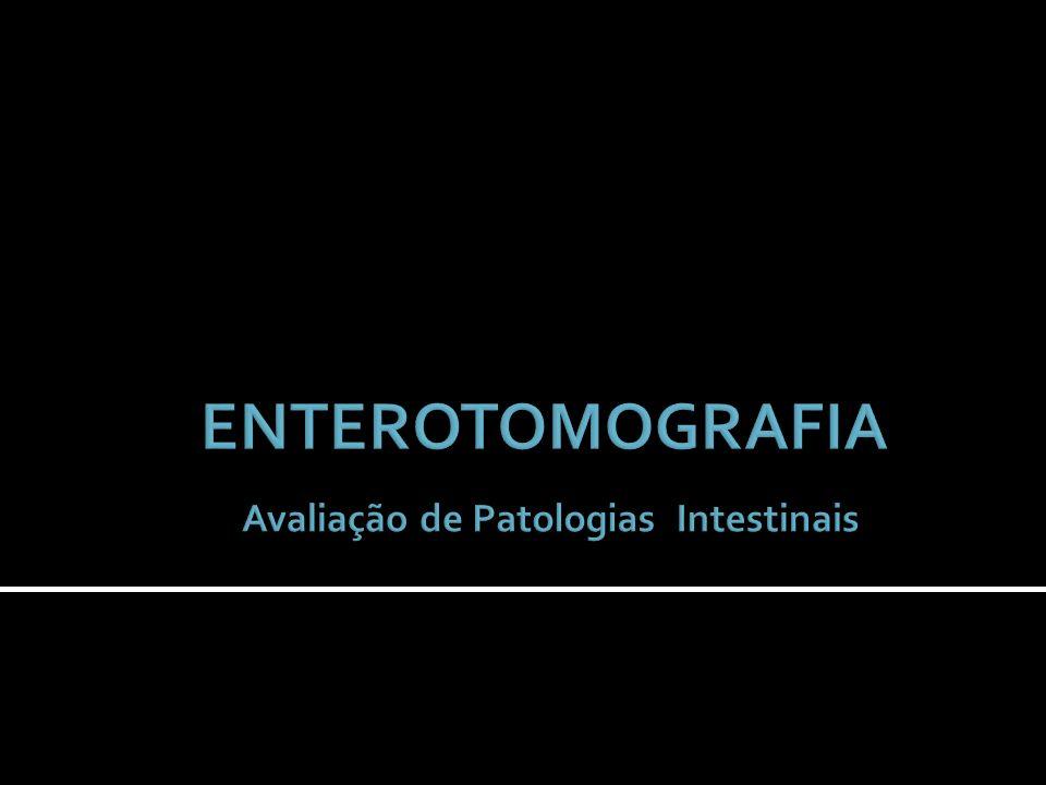 Demonstrar a importância da enterotomografia computadorizada (entero-TC) e como este exame pode contribuir na elucidação diagnóstica em pacientes com doenças intestinais.