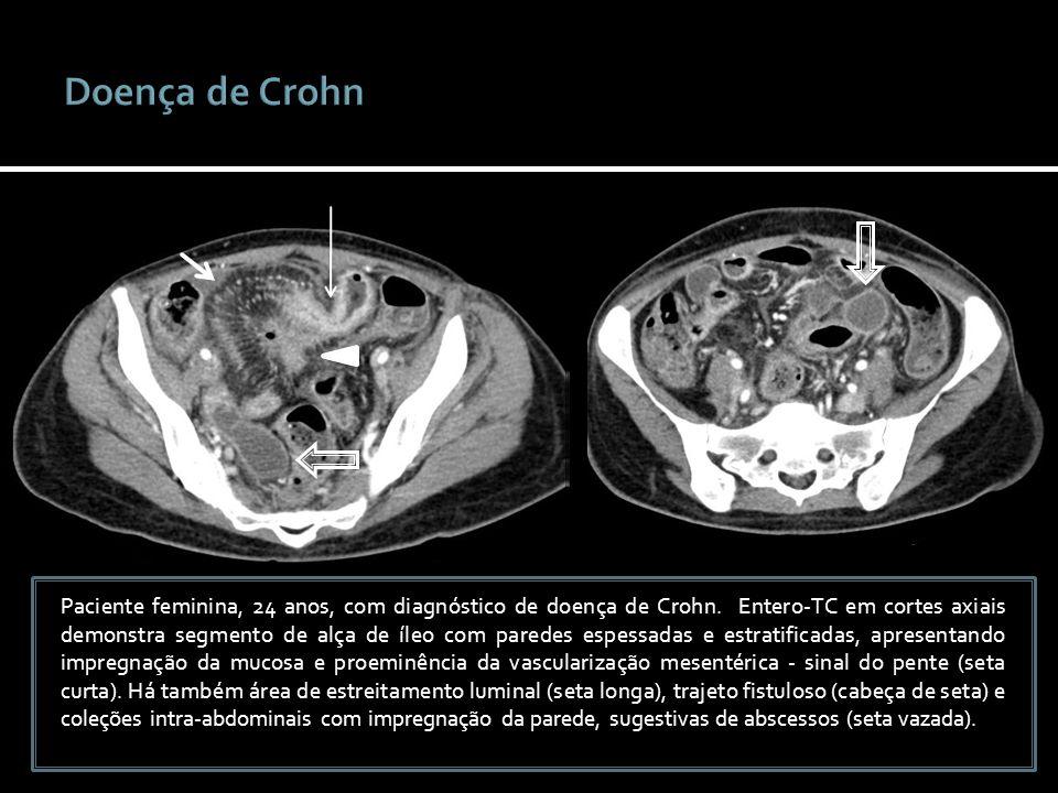 Paciente feminina, 24 anos, com diagnóstico de doença de Crohn. Entero-TC em cortes axiais demonstra segmento de alça de íleo com paredes espessadas e
